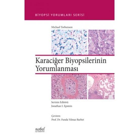 Karaciğer Biyopsilerinin Yorumlanması - Biyopsi Yorumları Serisi