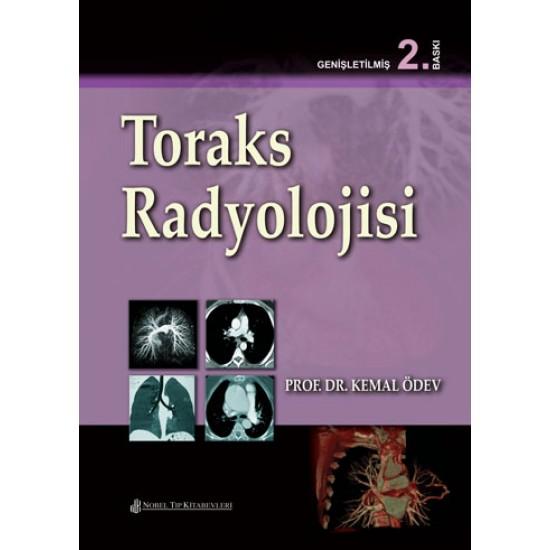 Toraks Radyolojisi